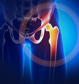 Остеоартроз тазобедренных суставов