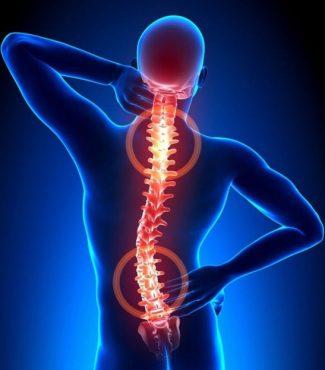 Боль в спине  остеохондроз